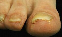 psoriasisnagels lijken soms een beetje op schimmelnagels, de brokkelige hoornlaag ontbreekt echter