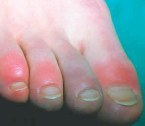 blauwe voeten doorbloeding